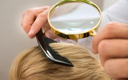Scalp Psoriasis: What is it?