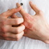 5 Ways To Treat Scalp Plaque Psoriasis At Home, All About Psoriasis: From Plaque Psoriasis Treatments to Pustular, chronic plaque psoriasis treatment, Eczema, Fever with rashes, Is It Psoriasis? Treatment For Itching Skin, Itchy rash, Itchy scalp, medications plaque psoriasis, medications psoriasis, medicine for plaque psoriasis, medicine plaque psoriasis, medicines plaque psoriasis, mild scalp plaque psoriasis treatment, palque psoriasis treatment, palque psoriasis treatment options, pictures of plaque psoriasis, Pictures of scalp plaque psaq, plague psoriasis drug, plague psoriasis treatment, plague psoriasis treatment options, plague psoriasis treatments, plaque psoriasis drug, plaque psoriasis drug treatment, plaque psoriasis durg, plaque psoriasis medication, plaque psoriasis remedies, plaque psoriasis remedy, plaque psoriasis scalp, plaque psoriasis treatment, plaque psoriasis treatment options, plaque psoriasis treatments, plaque psoriasisn remedies, plaque psoriasistreatment options, psoriasis and treatment, psoriasis medication, psoriasis medications, psoriasis medicines, psoriasis plaque, psoriasis treatment, psoriasis treatment info, psoriasis treatment option, psoriasis treatment options, Psoriasis treatments, Rash on 6 month old, Rash on ball, Red rash pictures, remedy psoriasis, scalp psoriasis treatment, Scalp psorisasi, severe plaque psoriasis treatment, severe psoriasis treatment, severe psoriasis treatments, skin psoriasis treatment, Skin rash, Skin rashes, treat plaque psoriasis, treating plaque psoriasis, treating plaque psoriasis treatment, treating psoriasis, treatment for psoriasis rash, treatment psoriasis, what causes ichness on body, What Does Your Skin Rash Mean?, What is Plaque Psoriasis?, what is psoriasis, What You Can Do To Relieve Psoriasis, what's a line of small red dots on arm, Why does my skin ich